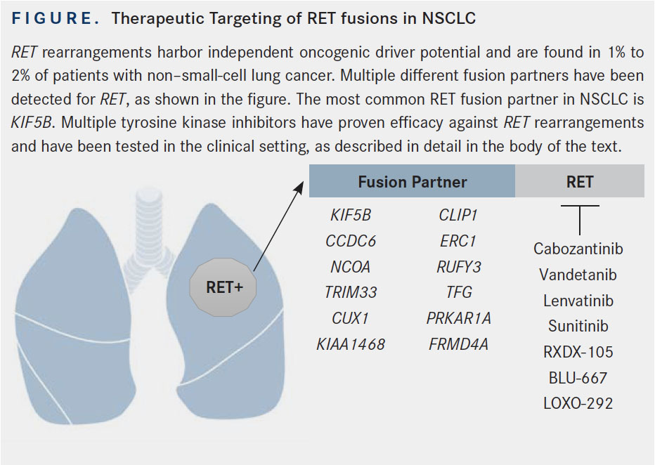 RET Rearrangements in Non-Small Cell Lung Cancer