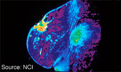 Understanding Tumor Biology Informs Treatment Choice in Early Breast Cancer